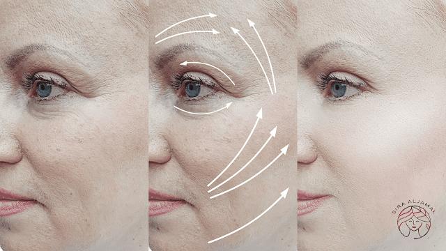 علاج ترهل الوجه الاسباب والعلاج