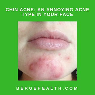 How To Heal Chin Acne