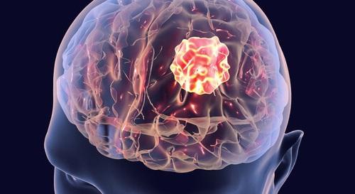 هل تعرف ما هي أسباب سرطان الدماغ؟؟ اسباب سرطان الدماغ بالتفصيل