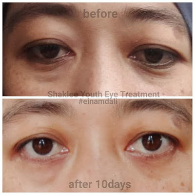 Testimoni Youth Restoring Eye Treatment Shaklee