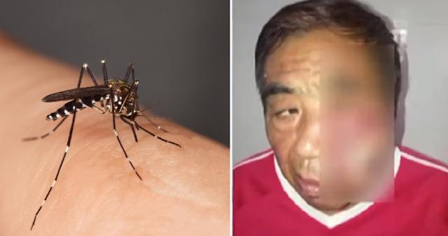 Wajah Pria Ini Bengkak dan Nyawanya Terancam karena Menggaruk Bekas Gigitan Nyamuk!