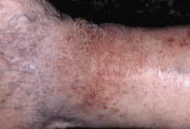 Obat kulit gatal eksim pada kaki dan betis
