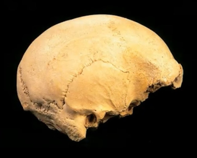 Study 'cures' oldest case of deafness in human evolution