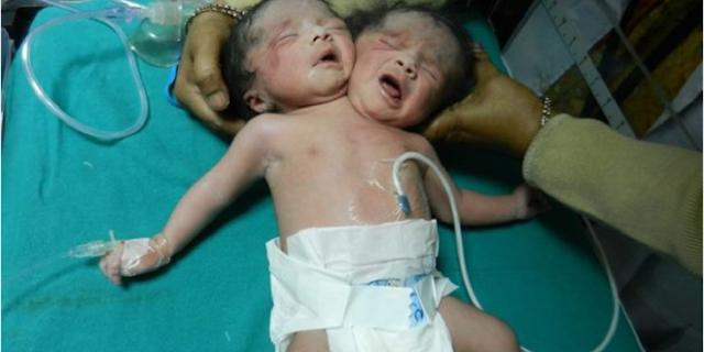 سبحان الله. ام سورية تضع مولودها براسين.. وهذا ما حصل معها!