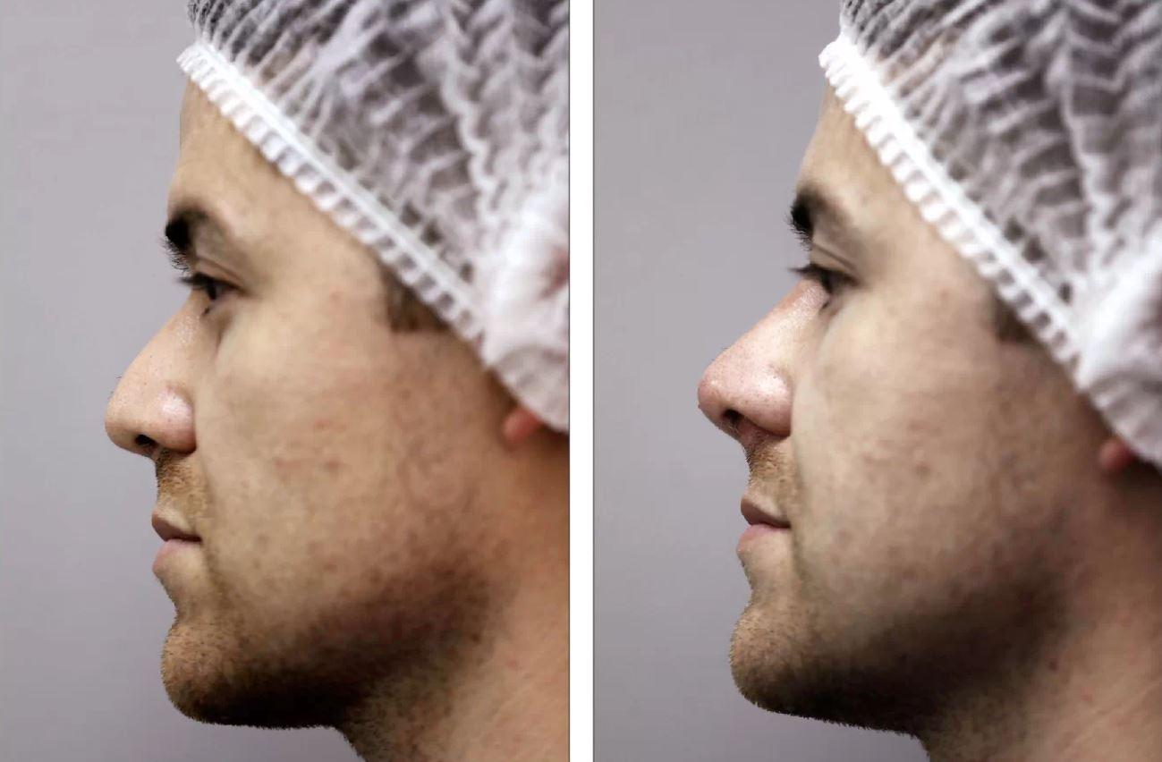 Cómo respingarse la nariz en media hora