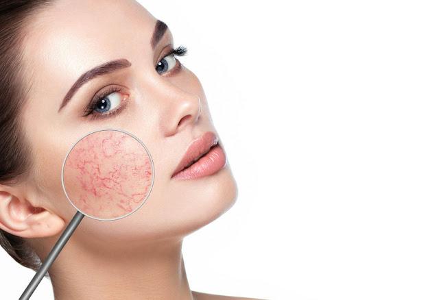 Remèdes pour soigner l'acné rosacée d'une manière efficace et rapide