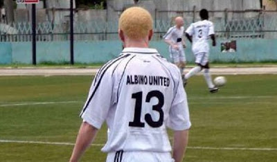 Albino playing in sport