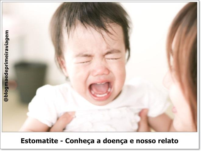Estomatite: Conheça a doença e nosso relato