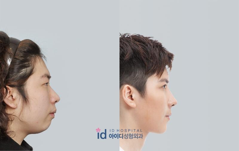 Id Hospital Korea Masculine Male Rhinoplasty
