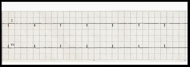Float Nurse: Basic EKG Rhythm Test 14