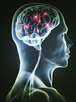 The goal of the study is to find an effective medication or vaccine for the treatment of Alzheimer's disease.