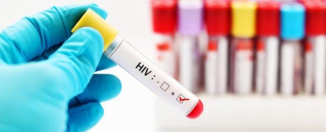 معلومات طبية عن مرض نقص المناعة/الإيدز HIV/AIDS