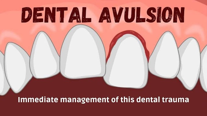 DENTAL AVULSION: Immediate management of this dental trauma
