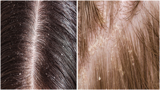 Facts About Dandruff And Ways On How To Solve It
