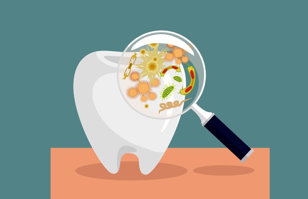 Infección Odontogénica