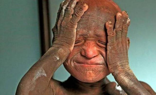 """في حالة نادرة.. طفل يتحول إلى """"تمثال حجري"""" يعاني من مرض ليس له علاج!!"""