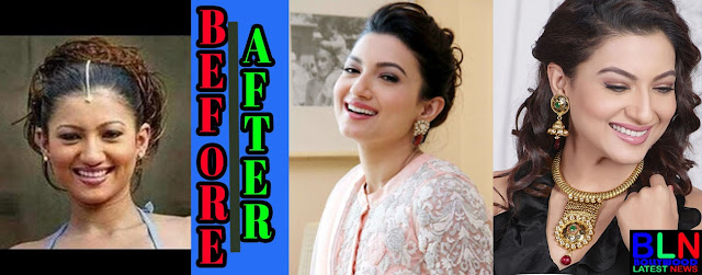 GAUHAR KHAN Bollywood Actresses Before and After Plastic Surgery