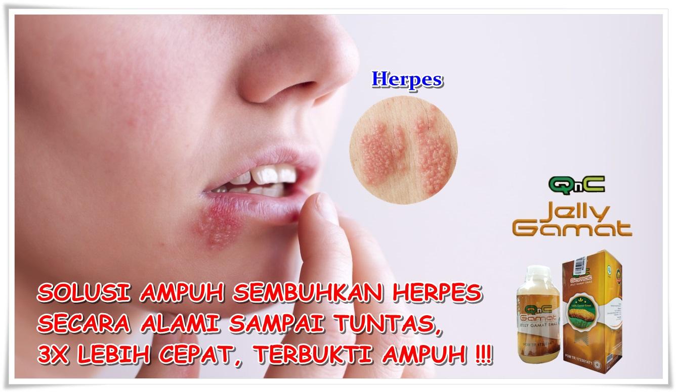 Cara Menyembuhkan Herpes Secara Alami Sampai Tuntas 100% ...