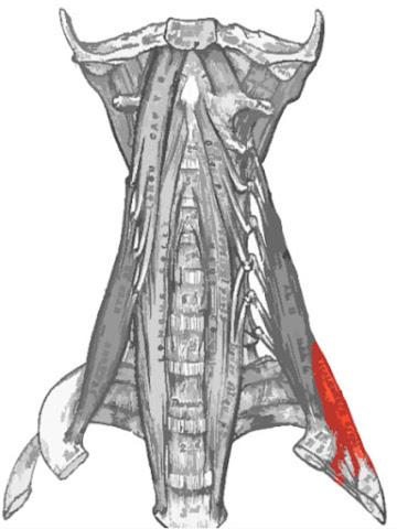 Músculo escaleno posterior resaltado de color rojo