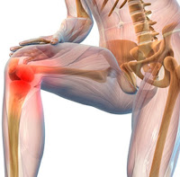 Artrosi ginocchio - Fisioterapia Montevarchi