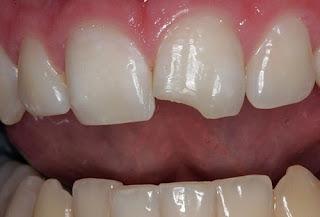 Trám răng cửa bị mẻ và những điều cần lưu ý cho bạn