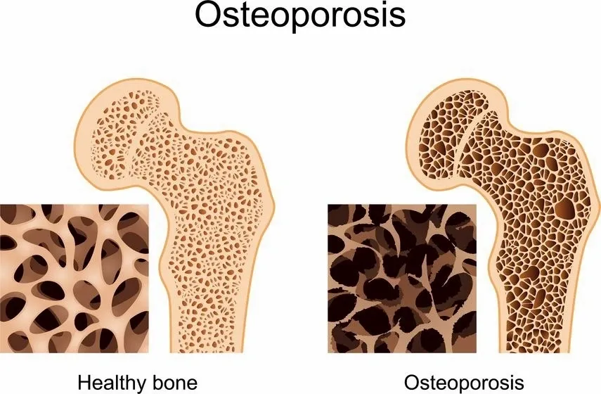 11++ Osteoporosis most common in which ethnic group ideas in 2021