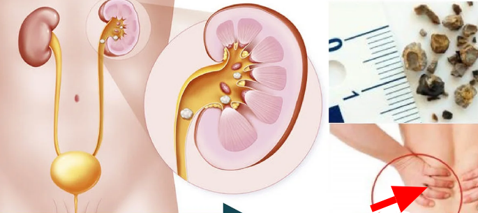 Here's How To Dissolve Kidney Stones At Home
