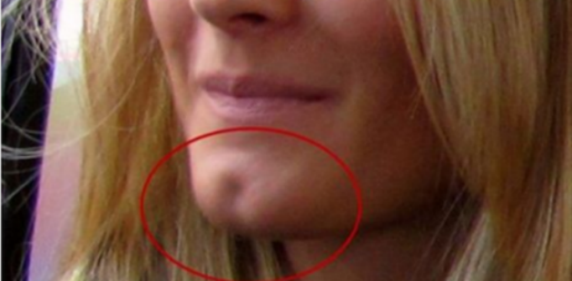 IF You Have This Hole On Your Chin You Are  Really  Special ! Here's What  It Says About You