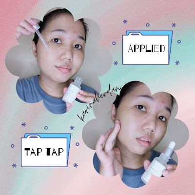 whitelab acne serum