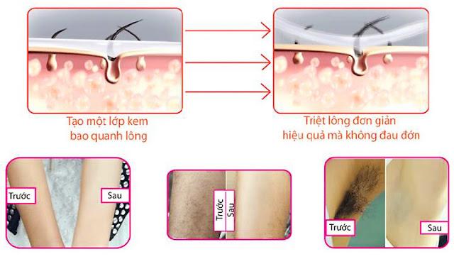gào review, gào tẩy lông, triệt lông, tẩy lông vĩnh viễn, tẩy lông an toàn, triệt lông an toàn, triệt lông vĩnh viễn