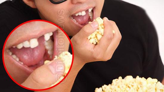 consumidor banguela quebrar dente pipoca direito