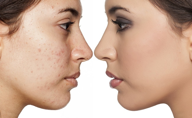 5 Foods That Cause The Onset Of Acne And Hormonal Problems