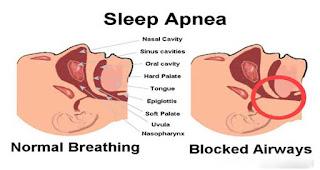 Apnea tidur