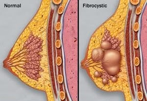 Breast Cysts Treatment With Natural Herbal - Healthy T1ps