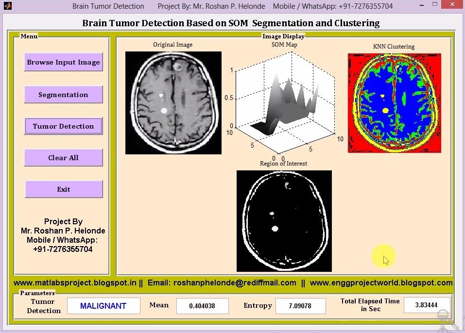 Matlab Code for Brain Tumor Detection on MRI Images Using