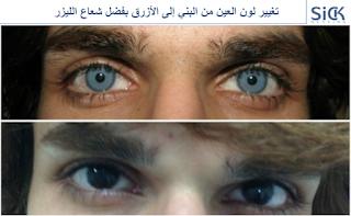 تغيير لون العين من البني إلى الأزرق بفضل شعاع الليزر