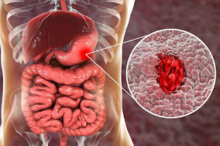 stomach ulcer wiki