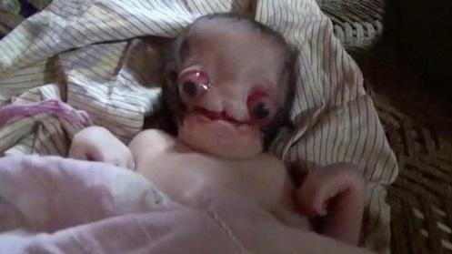 """Bebê recém nascido na índia deformado é comparado com um """"ALIENÍGENA"""""""