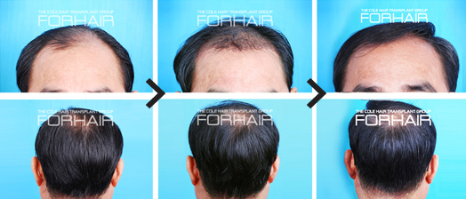 dr cole hair transplant, forhair korea, hair loss treatment, forhair korea clinic, non shaven hair transplant, fue transplant