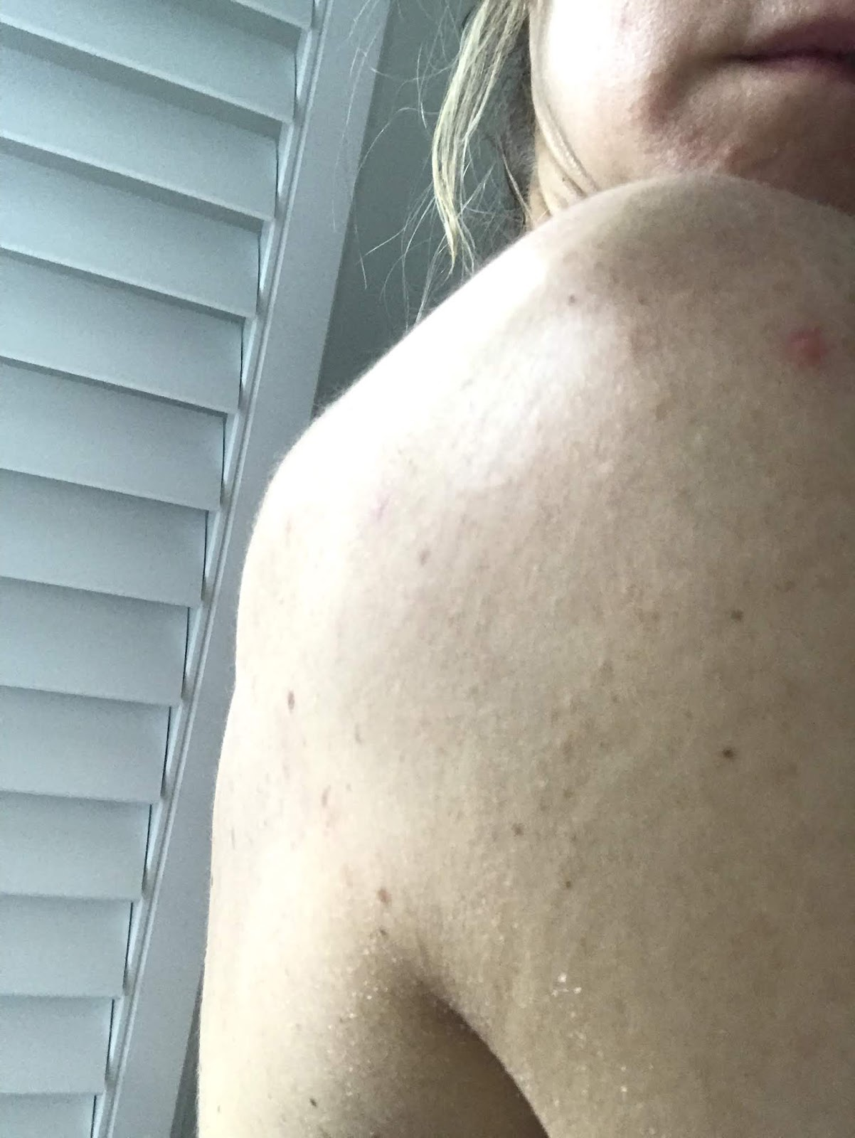 Cleared acne right shoulder after diet and homeopathy