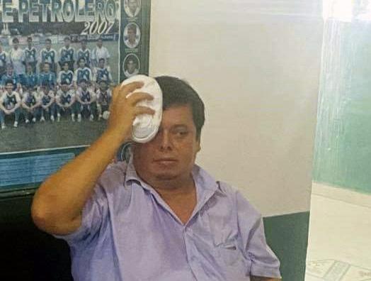 El camarógrafo Bernardo Vaca es visto mientras alivia el dolor provocado por el golpe de un fanático de Oriente Petrolero / RRSS