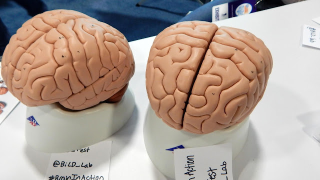 A photo of two models of brains