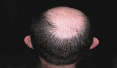 Menumbuhkan Rambut Botak Dengan Telur Udang