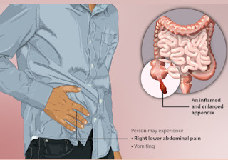Appendicitis Causes Home Remedies and Treatment