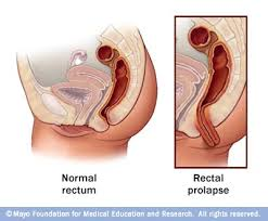 rectum-after-anal-sex