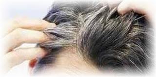 Penyebab Rambut Kepala Cepat Beruban