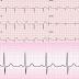 Prefeitura de Várzea da Roça implanta serviço de eletrocardiograma no município