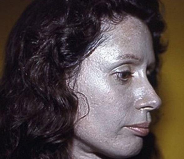 Skin Disease Argyria (Argyrosis)