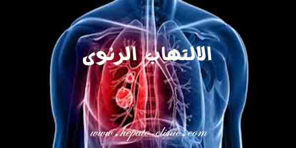 الالتهاب الرئوي, الالتهاب الرئوي عند الاطفال, الالتهاب الرئوي عند الرضع, الالتهاب الرئوي الحاد, هل الالتهاب الرئوي يسبب الوفاة, هل الالتهاب الرئوي يؤثر على القلب, هل الالتهاب الرئوي معدي, هل الالتهاب الرئوي يعود, الالتهاب الرئوي كم يستمر, الالتهاب الرئوي هل هو خطير, الالتهاب الرئوى ما هو, نتائج الالتهاب الرئوي, نسبة الالتهاب الرئوي, الالتهاب الرئوي لكبار السن, اسباب الالتهاب الرئوي عند كبار السن, علاج الالتهاب الرئوي عند كبار السن, كليبسيلا الالتهاب الرئوي, الالتهاب الرئوي عند الكبار, علاج الالتهاب الرئوي طبيا, طعم الالتهاب الرئوي, ضرر الالتهاب الرئوي, الالتهاب الرئوي سبب, الالتهاب الرئوي بدون سعال, الالتهاب الرئوي ما سببه, الالتهاب الرئوي للكبار, الالتهاب الرئوي تطعيم, تطعيم الالتهاب الرئوي للكبار