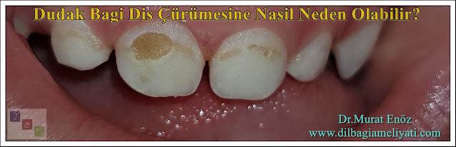 Dudak Bağı Diş Çürümesine Nasıl Neden Olabilir?